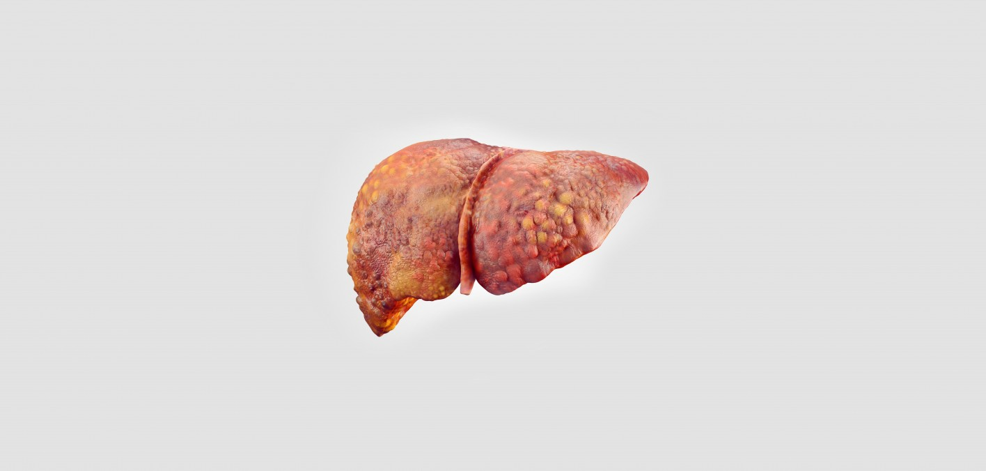 Hepatitis C And Cirrhosis  Stages Of Liver Damage