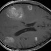 Brain metastases from melanoma