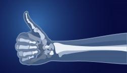bones skeleton x-ray