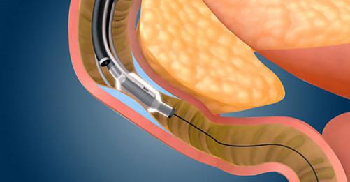 duodenal mucosal resurfacing (DMR)